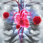 COVID-19 Increases Rate of Heart Attacks in People with Genetic High Cholesterol and Heart Disease